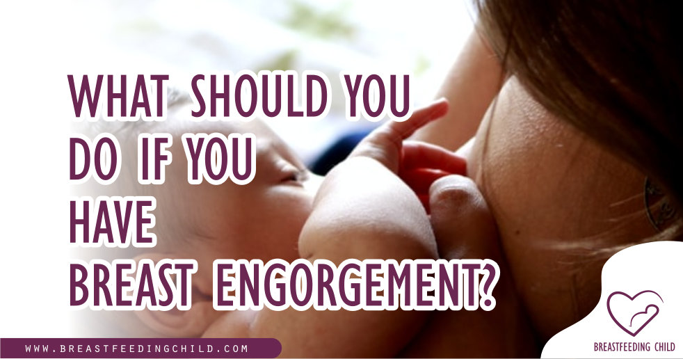 What Should You Do If You Have Breast Engorgement?